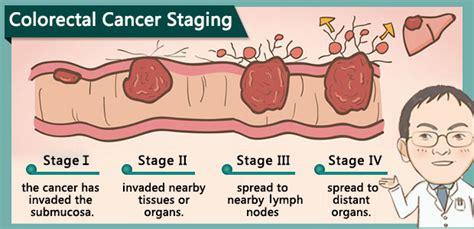 Colorectal Cancer Staging | Modern Cancer Hospital ...