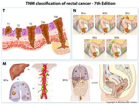 Colorectal cancer staging / Radiological classifications ...