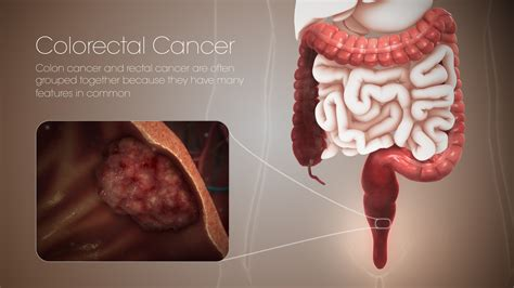 Colorectal cancer: Symptoms, Causes, and Treatment ...