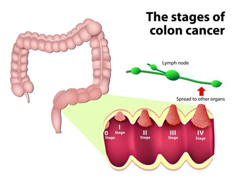 Colorectal cancer: Symptoms, treatment, risk factors, and ...