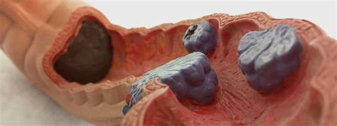 Colorectal  Colon  Cancer Quiz FAQs   Frequently Asked ...