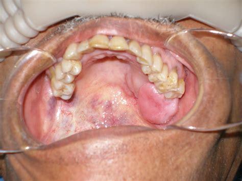COM May 2010 Diagnosis   UW School of Dentistry