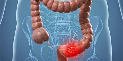 Combinación medicamentos mejora el tratamiento del cáncer ...