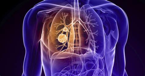 Comienza un estudio de Fase III para cáncer microcítico de ...