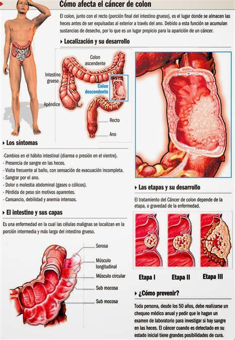 Cómo afecta el cáncer de colon   INVDES