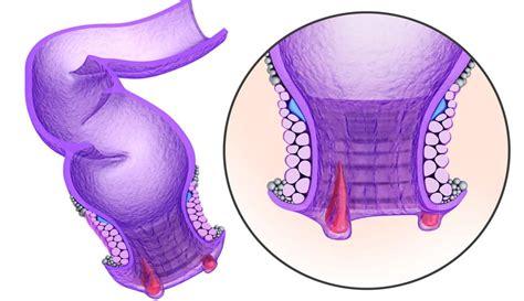 ¿Cómo aliviar el dolor de hemorroides? • Portal de salud