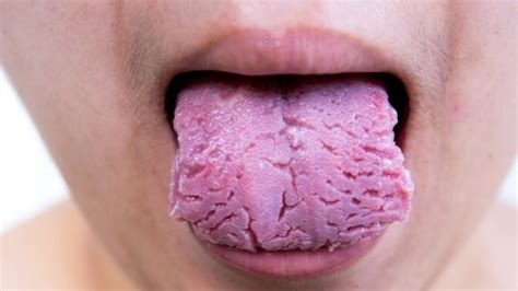 Cómo curar la lengua agrietada de forma eficaz