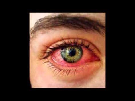Cómo curar los ojos rojos e irritados   YouTube