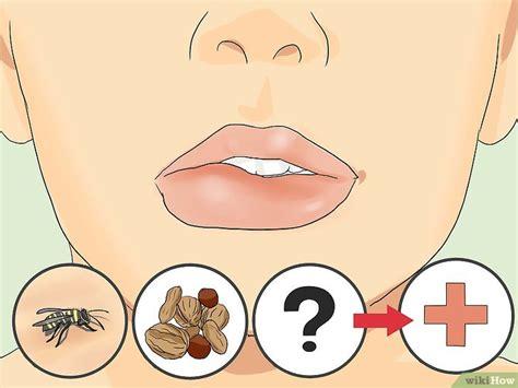 Cómo curar un labio hinchado: 15 pasos  con fotos