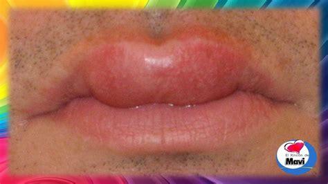 Como desinflamar un labio hinchado   Remedios caseros para ...