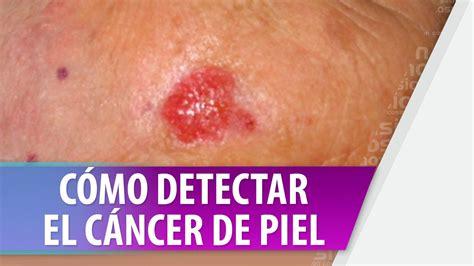 Como detectar cancer de piel   YouTube
