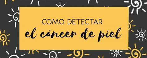 Cómo detectar el cáncer de piel   Blog Cáncer y Vida