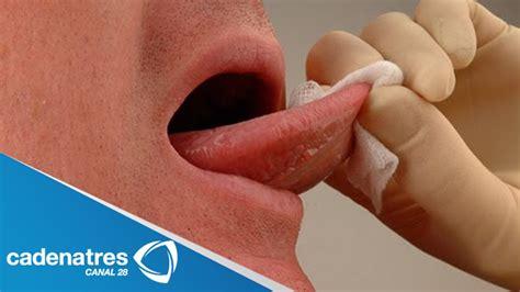 ¿Cómo detectar si hay cáncer bucal?   YouTube