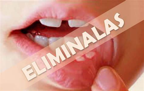 Como eliminar el herpes labial o aftas bucales con estos ...