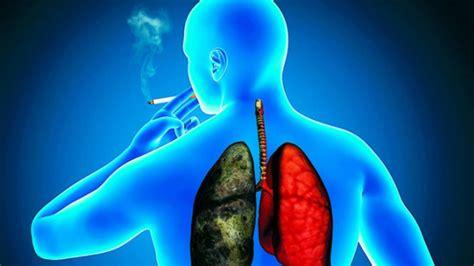 Cómo ha cambiado el paciente con cáncer de pulmón en ...