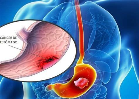 Cómo identificar el cáncer de estómago