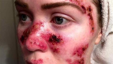 Como Prevenir el cáncer de piel ~ viviendo en salud2