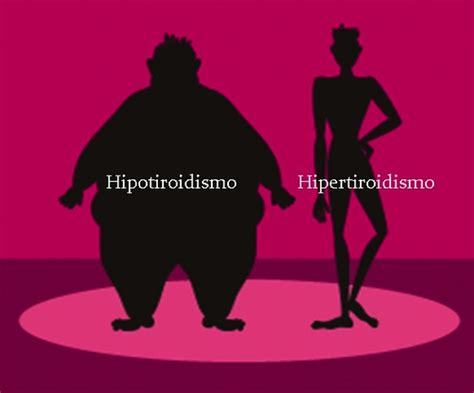 ¿Cómo puedo adelgazar si tengo hipotiroidismo?