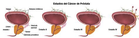 Cómo reconocer el cáncer de próstata