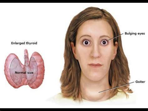 ¿Cómo Reconocer los Síntomas del Hipertiroidismo?   YouTube