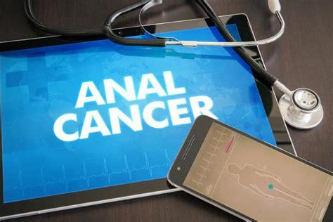 Cómo saber si tengo cáncer de ano