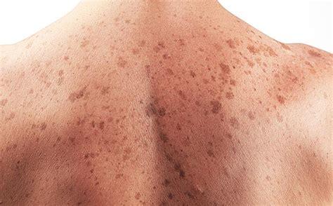 ¿Cómo saber si tengo cáncer de piel? – Piel Sin Manchas