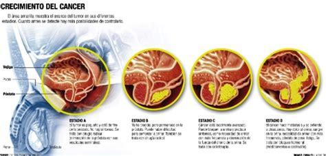 ¿Cómo se produce un cáncer de próstata ?   La próstata