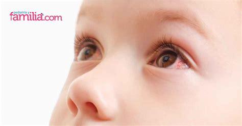 Conoce la uveítis, una inflamación ocular que también ...