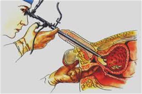Conozca Todo Sobre Operación de Próstata Agrandada