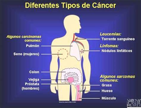 Conozcamos al cáncer como enfermedad y no como sentencia ...