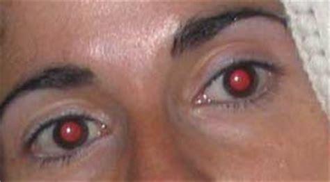 Corregir Ojos rojos con Photoshop