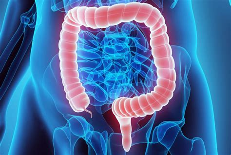 Could gut bacteria drive colon cancer?