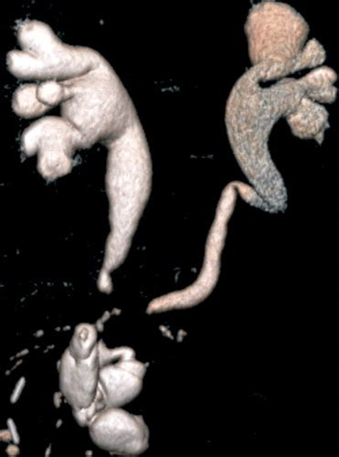 CT Findings in Urinary Diversion after Radical Cystectomy ...