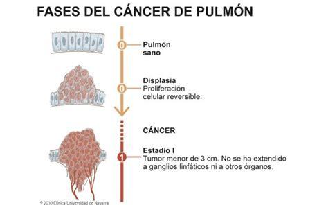 ¿Cuáles son las fases del #cancer de pulmón? | Neumología ...
