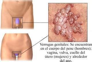 Cuáles son los síntomas del Virus del Papiloma Humano ...