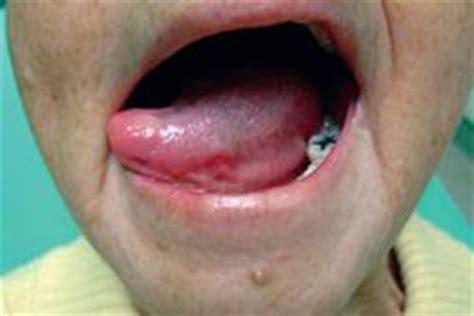 Cuidados De La Salud Oral