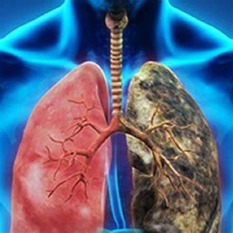 Cuídate del cáncer de pulmón | Martha Debayle | W Radio Mexico