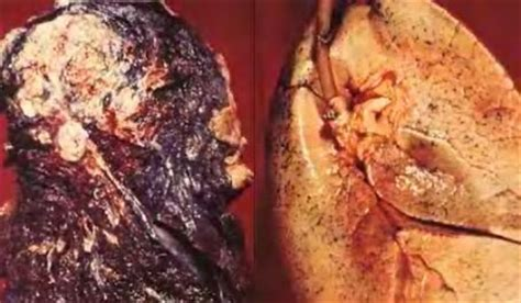 De pulmon estadio IV