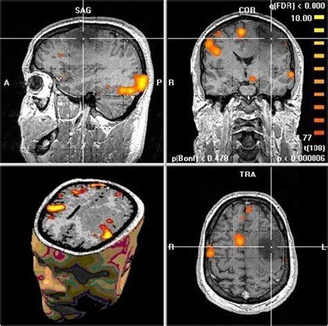 Déficit de atención/inatención: Estudios de neuroimagen y ...