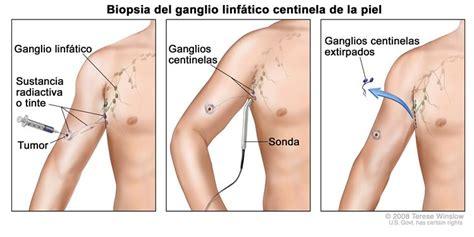 Definición de biopsia de ganglio linfático centinela ...
