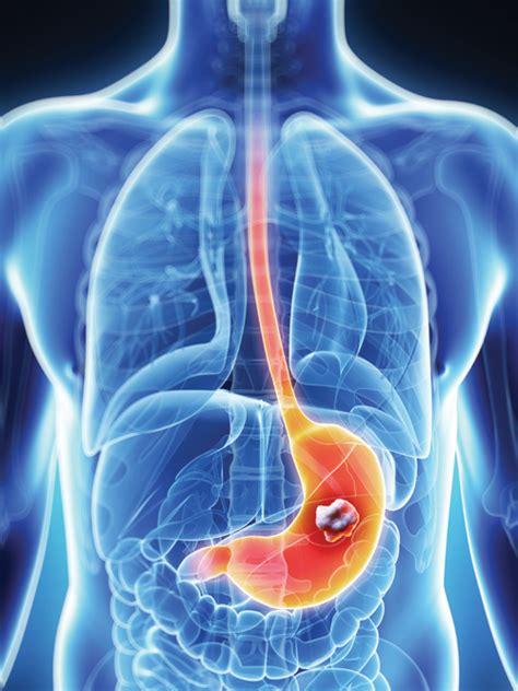 Definición de Cáncer de Estómago » Concepto en Definición ABC