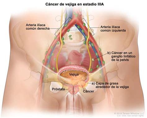 Definición de cáncer de vejiga en estadio III ...