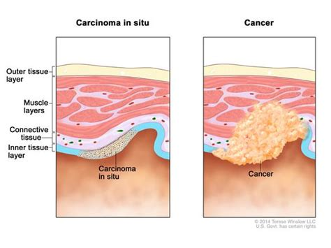 Definition of carcinoma in situ   NCI Dictionary of Cancer ...