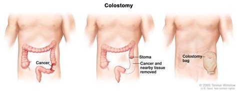 Definition of colostomy   NCI Dictionary of Cancer Terms ...