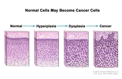 Definition of hyperplasia   NCI Dictionary of Cancer Terms ...