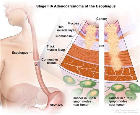 Definition of stage III esophageal adenocarcinoma   NCI ...