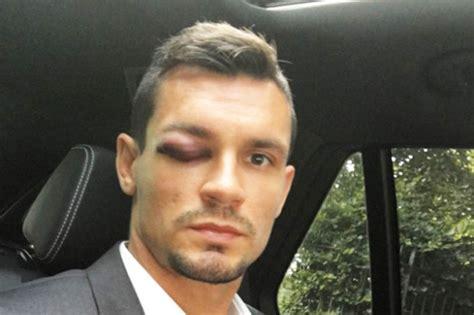Dejan Lovren: Liverpool defender gassed by robbers on ...