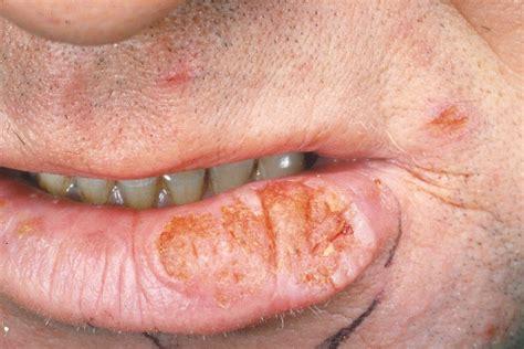 Dental Hygiene 101 > Dr.d > Flashcards > Oral Cancers PPT ...