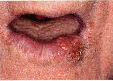 Dentistry lectures for MFDS/MJDF/NBDE/ORE: Lip lesions ...