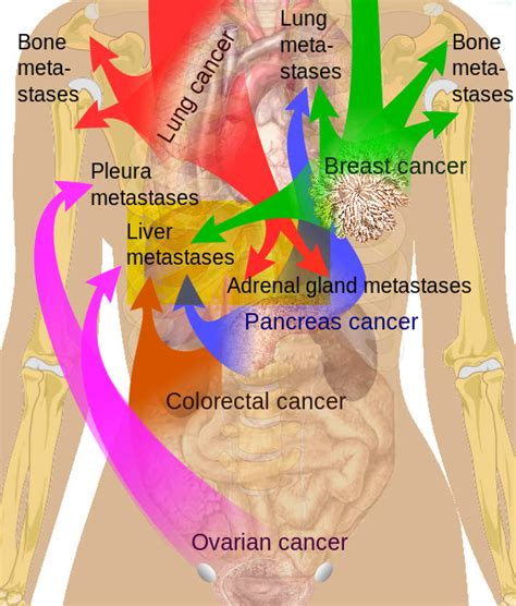 Department of Surgery   Liver Metastases